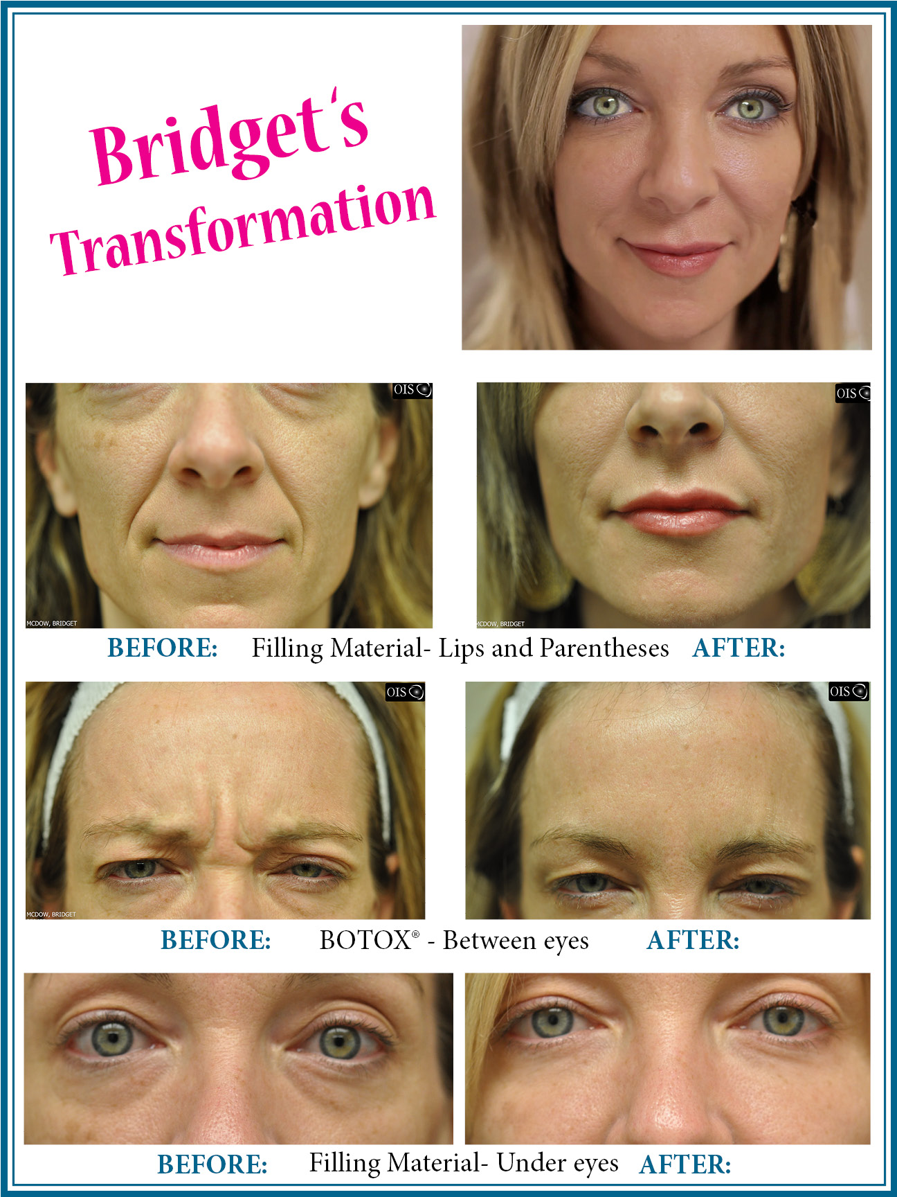 sutton-ryan-patient-transformation