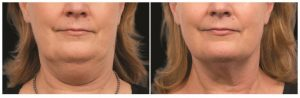 coolsculpting-before-and-after-santa-rosa-cool-mini-chin--1024x458