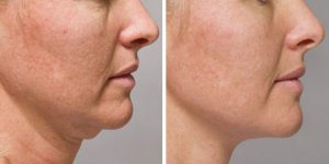 kybella-treatments-mi-before-after-03