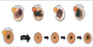 Know the ABCDE's of Melanoma