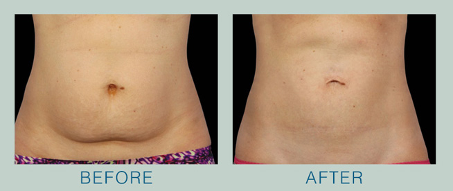 Take advantage of the newest technology from CoolSculpting® and freeze your fat even faster!