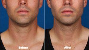 kybella-double-chin-treatment-photos