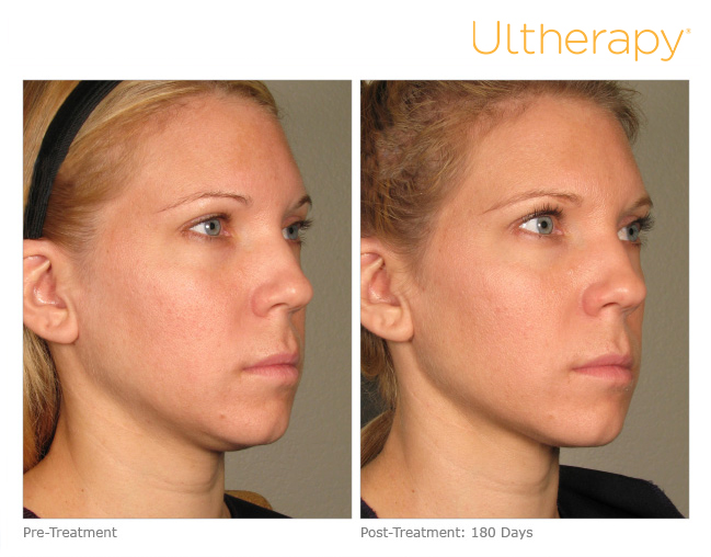 Ultherapy® | Sutton Dermatology & Aesthetics Center