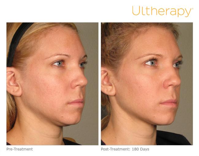 Ultherapy 174 Sutton Dermatology Amp Aesthetics Center