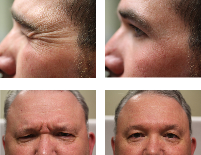 Just For Men Aesthetic Treatments At Sutton Dermatology