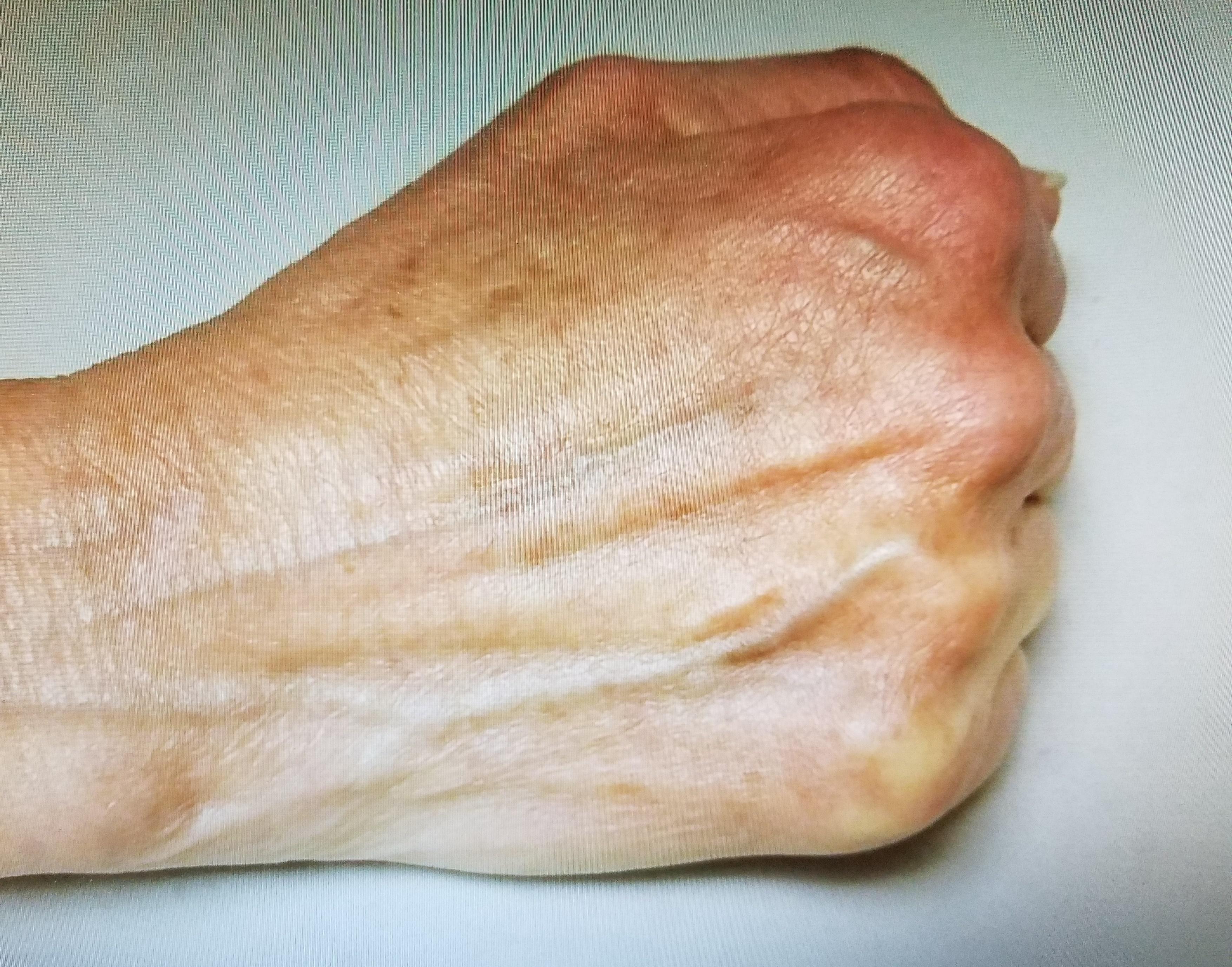 """""""Handy Work""""  Hand Rejuvenation"""