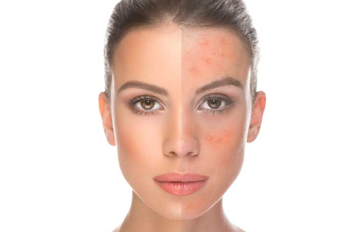 Learing more about Rosacea