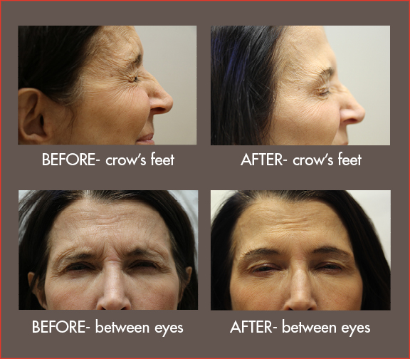 BOTOX with Leigh Sutton, M.D.