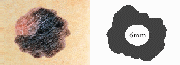 An example of a irregular mole, larger than 6mm in diameter