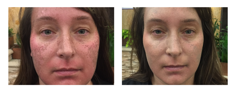 SuttonDerm-BeforeAfterGallery-Colorescience