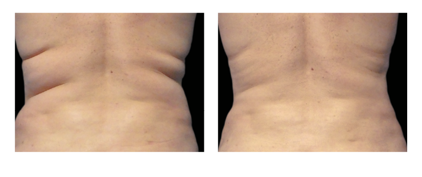 Coolsculpting Sutton Dermatology Amp Aesthetics Center