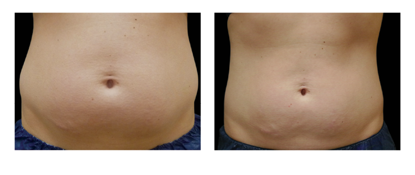 SuttonDerm-BeforeAfterGallery-CoolSculpting3