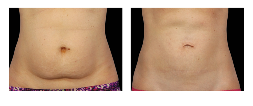 SuttonDerm-BeforeAfterGallery-CoolSculpting4