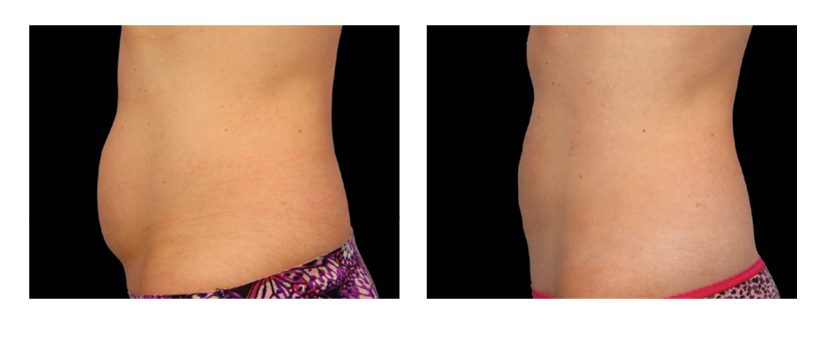 SuttonDerm-BeforeAfterGallery-CoolSculpting5