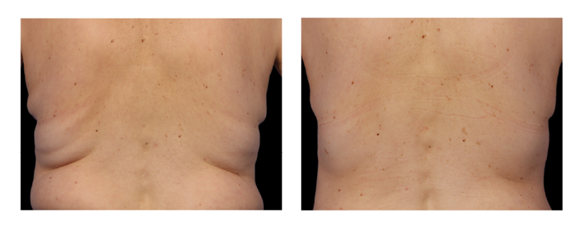 SuttonDerm-BeforeAfterGallery-CoolSculpting6