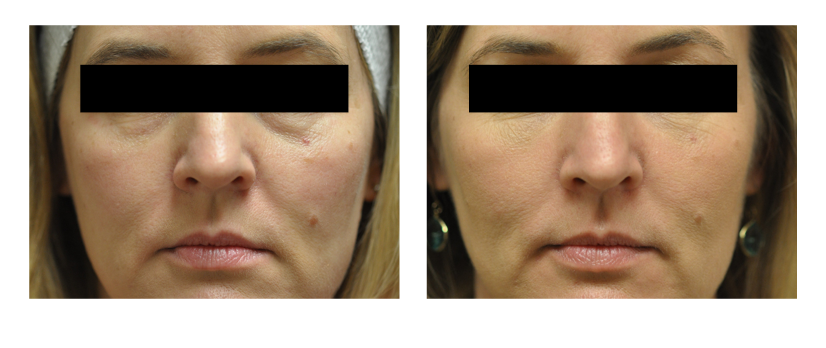 SuttonDerm-BeforeAfterGallery-Fillers