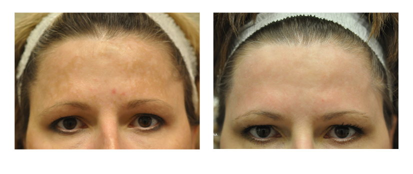 SuttonDerm-BeforeAfterGallery-Fraxel