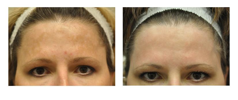 Fraxel® Laser Treatments | Sutton Dermatology & Aesthetics