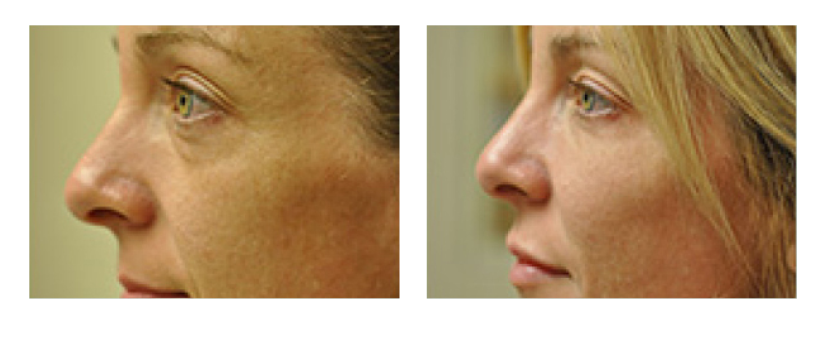IPL Skin Rejuvenation | Sutton Dermatology & Aesthetics Center