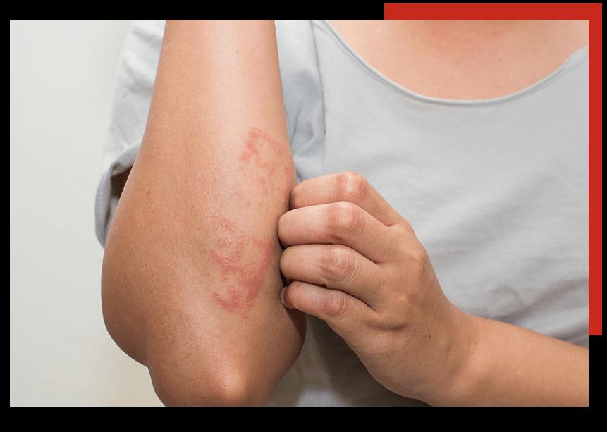 eczemaPic1