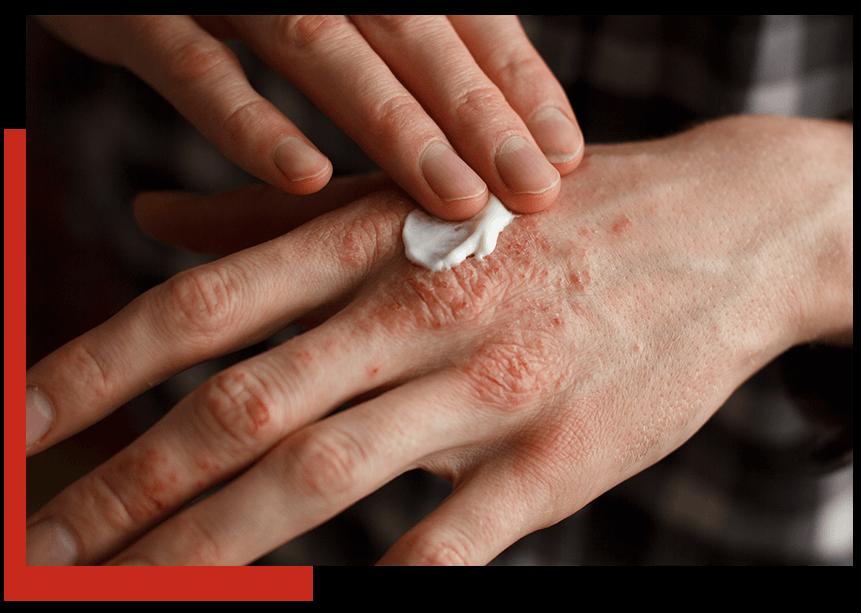 eczemaPic2