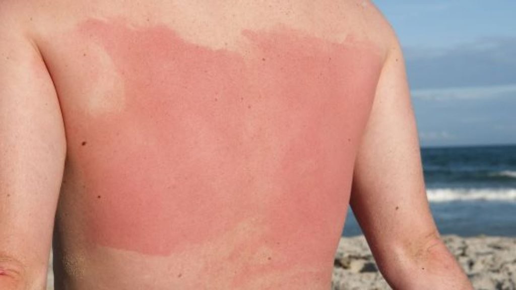 A sunburnt back
