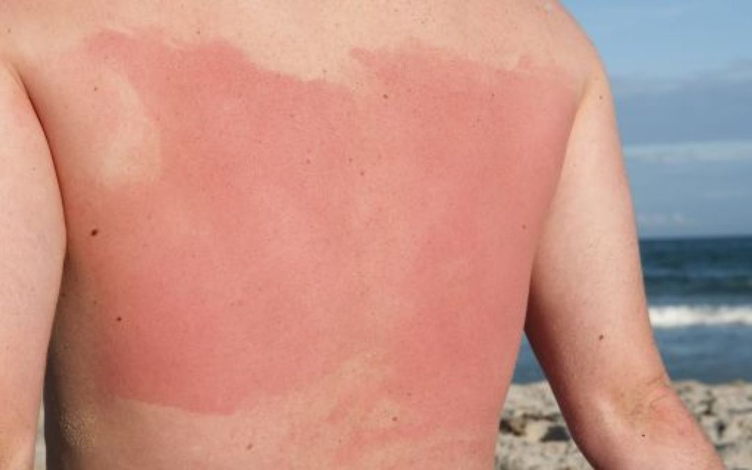 Spot This Rash–Summertime– Sun Sensitivity