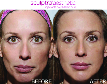 Before and after of sculptra aesthetic