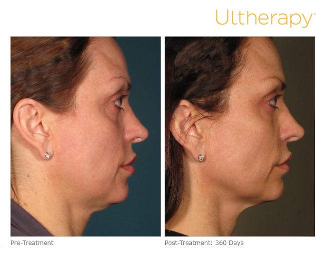 ultherapy-000p-015y_before-360daysafter_full-1